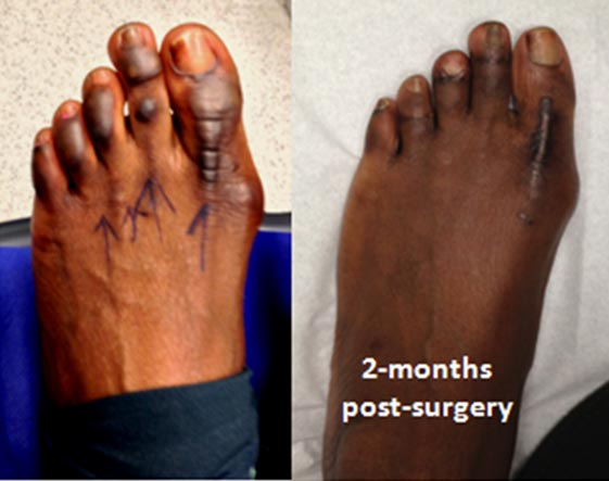 This patient had abnormal pigmented corn-type lesions over the four main toes. After simple anthroplasty treatment with only partial excision of the skin lesions, the effect was drastic with the rest of lesions clearing up also.