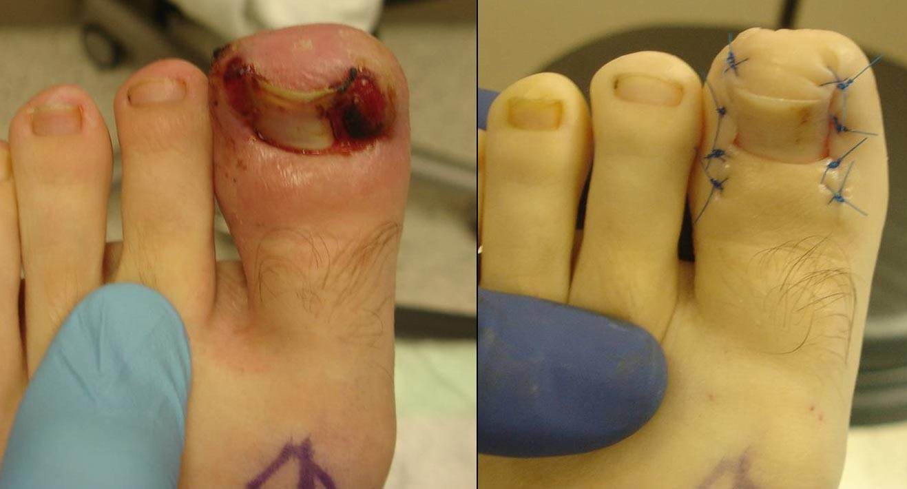 Before and after nail wedge resection procedure for ingrown nails affecting both sides of this 16-year old boy's big toe. Picture on the right was taken immediately following surgery, which also removed the inflamed tissue that had overgrown the sides of the nail. The foot is pale ecause a tourniquet is used for the procedure.