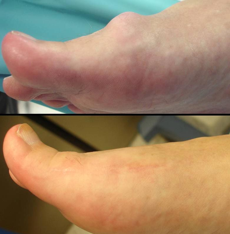Removal of unsightly bone bump - 'dorsal bunion'; from the top of the big toe joint.