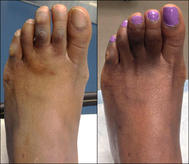 Corn removal with 2nd and 3rd toe shortening, 4-months after surgery.