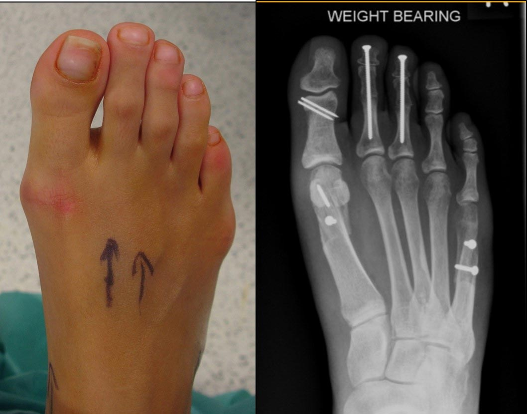 The 'Foot Face Lift' - both big toe and little toe join bunions are corrected together to narrow the foot