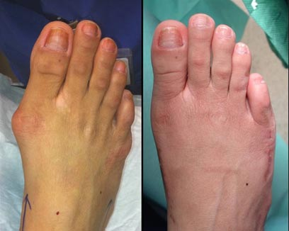 Typical appearance pre and post surgery of the 'Cinderella' procedure. The foot is considerably narrowed and the uncomfortable bumps which rubbed in shoes now means this lady wears her Jimmy Choo's with comfort!