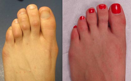This 26-year-old model had her bunion corrected and the middle 3-toes were shortened and straightened. She can now get her Louboutins on!