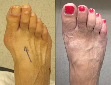 Our signature foot face lift: Both bunions and 2nd toe shortened and corrected.