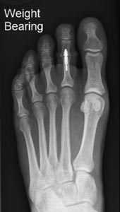 X-ray to show Nextra clip in the 2nd toe after toe-shortening surgery.