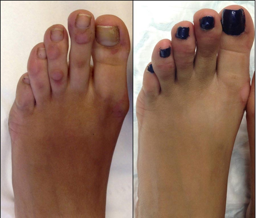 3-months following corn removal surgery. Any swelling and redness will resolve over the next 3-months. Understandably, the patient is very happy with her new toes!