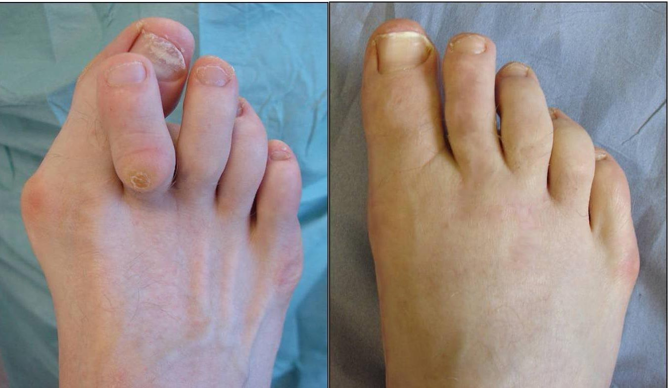 This nasty painful corn on the 2nd toe was caused by a hammertoe and bunion deformity. In this case, these had to be corrected because the corn kept returning after chiropody treatment.