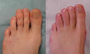 To show before and after of toe shortening surgery to the 2nd, 3rd and 4th toes (5-months post-surgery)