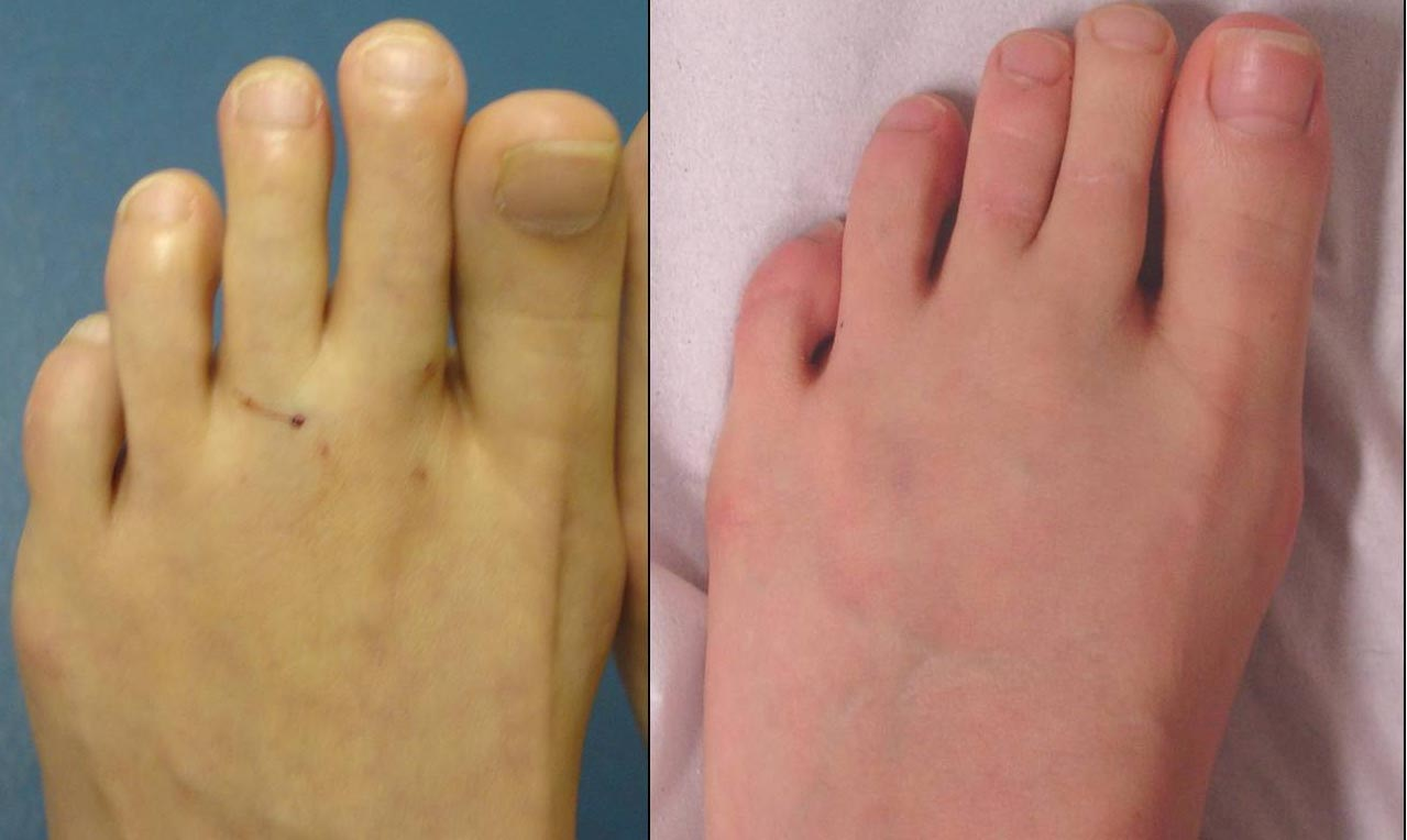 This lady is 4-months on from a 2nd and 3rd toe shortening procedure, she is very happy with the results of her surgery.
