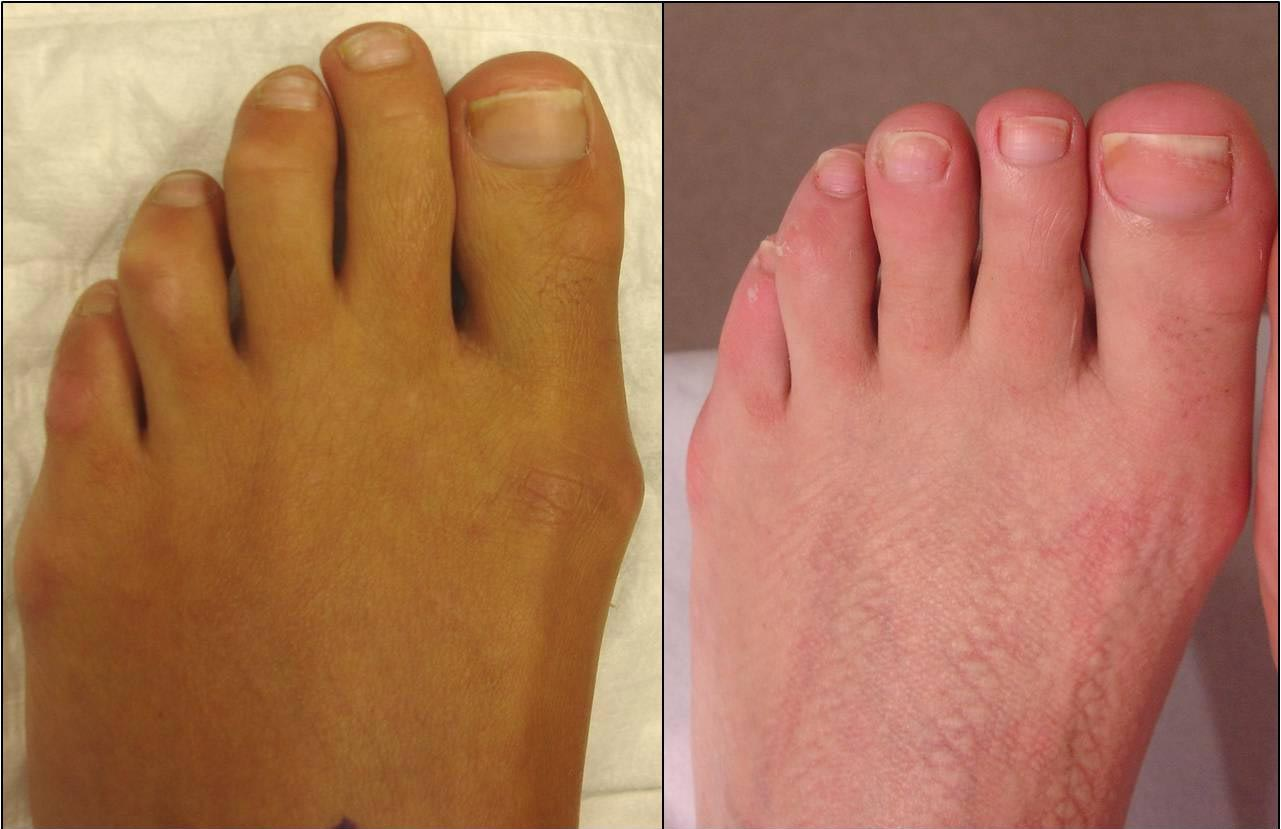 5-months post surgery for this left 2nd and 3rd toe cosmetic shortening surgery.